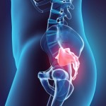 Treating Sciatic Pain With Exercise