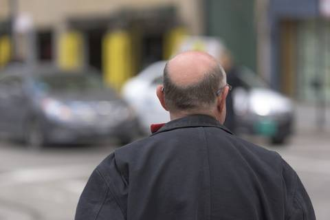 Male pattern baldness is a medical condition that only affects men