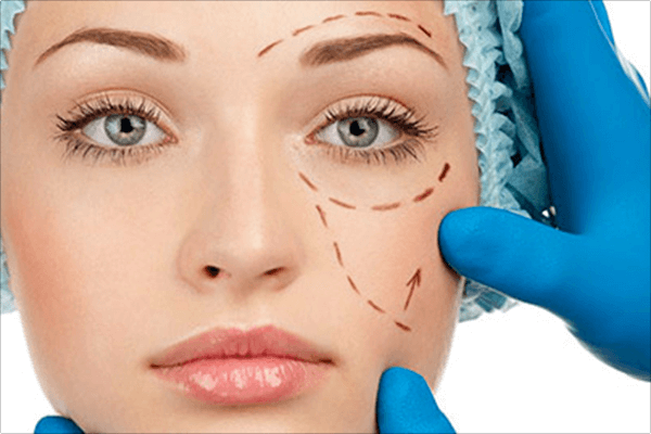 What is Face lift Surgery and when you should do it?