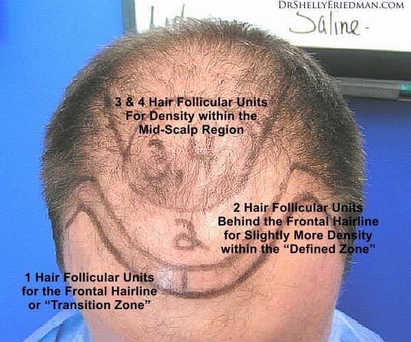 the majority of male patients they treat are looking to turn back the clock on their receding hairlines