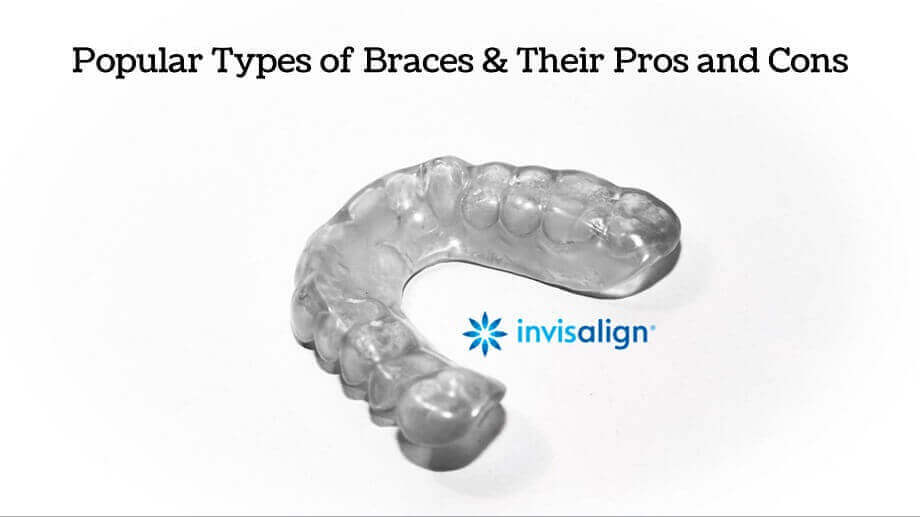 The most popular types of braces include Invisalign, self-ligating braces, lingual braces, and retainers.