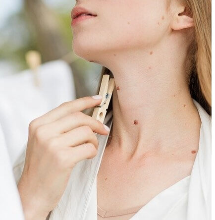 You must give these home remedies to remove moles a try